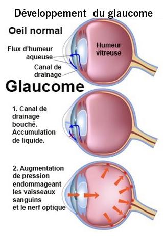 pression oculaire normale